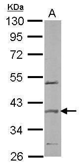 SPOP Antibody (PA5-28522)
