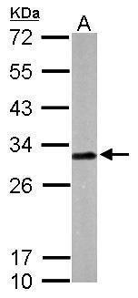 Latexin Antibody (PA5-28534) in Western Blot