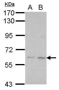 KLHDC7B Antibody (PA5-28537) in Western Blot