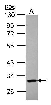 PARP11 Antibody (PA5-28545) in Western Blot