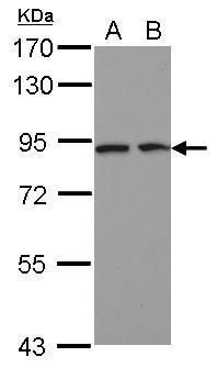 DCBLD2 Antibody (PA5-28547) in Western Blot