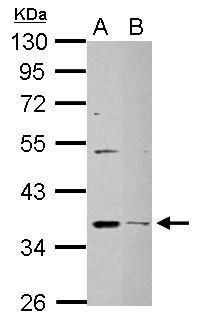 DHRS9 Antibody (PA5-28550) in Western Blot