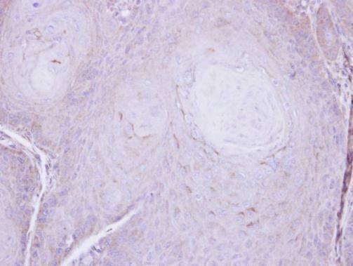 C16orf62 Antibody (PA5-28553)