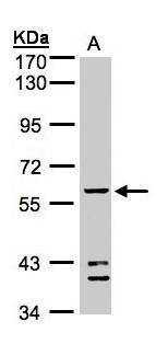 ALDH1B1 Antibody (PA5-28554) in Western Blot