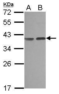 Carbonic Anhydrase VIII Antibody (PA5-28555)