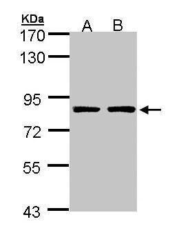 PAF1 Antibody (PA5-28560) in Western Blot