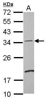 DCUN1D4 Antibody (PA5-28562) in Western Blot