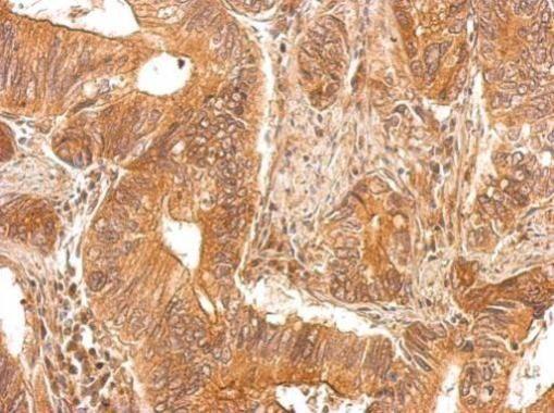 PAPSS1 Antibody (PA5-28568)