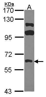 FRK Antibody (PA5-28573) in Western Blot