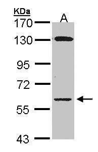 Glycerol kinase Antibody (PA5-28576)