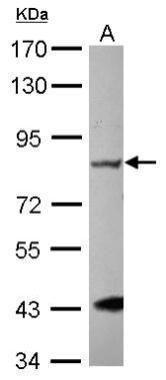 GRK2 Antibody (PA5-28579) in Western Blot