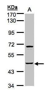 SPHK1 Antibody (PA5-28584) in Western Blot