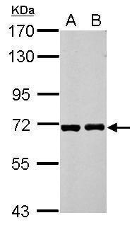 RIOK3 Antibody (PA5-28585) in Western Blot
