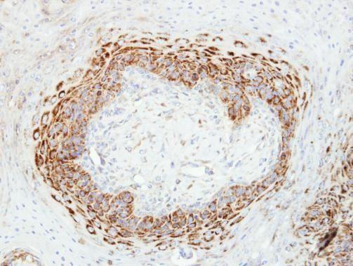 CKMT2 Antibody (PA5-28591) in Immunohistochemistry (Paraffin)