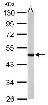 STK32B Antibody (PA5-28592) in Western Blot
