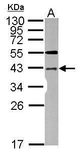 LYK5 Antibody (PA5-28594) in Western Blot