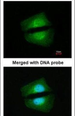 TAB1 Antibody (PA5-28600) in Immunofluorescence