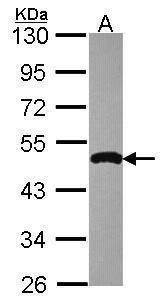 IKK gamma Antibody (PA5-28606) in Western Blot