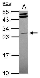 STK16 Antibody (PA5-28607) in Western Blot