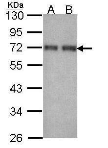 CCDC6 Antibody (PA5-28608)