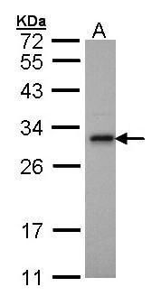 Adenylate Kinase 2 Antibody (PA5-28611) in Western Blot