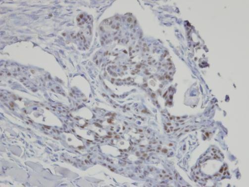 SART3 Antibody (PA5-28625) in Immunohistochemistry (Paraffin)