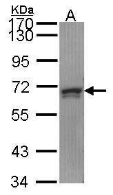 PRPF31 Antibody (PA5-28630)