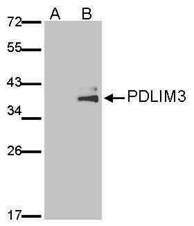 PDLIM3 Antibody (PA5-28631) in Western Blot