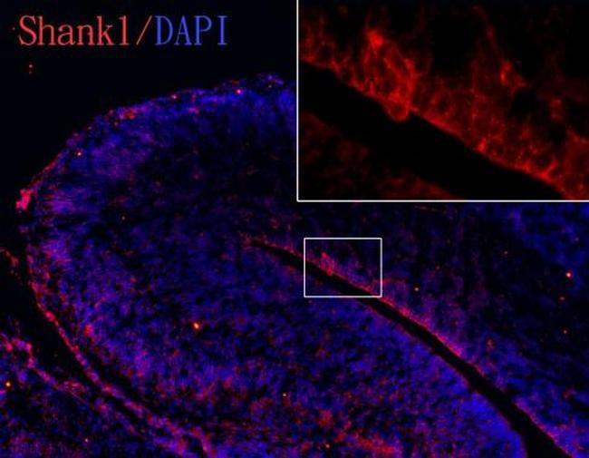 SHANK1 Antibody (PA5-28633) in Immunohistochemistry (Frozen)
