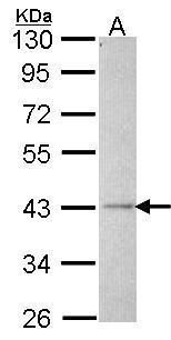 ALS2CR2 Antibody (PA5-28635) in Western Blot