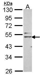 Nogo Receptor Antibody (PA5-28639) in Western Blot