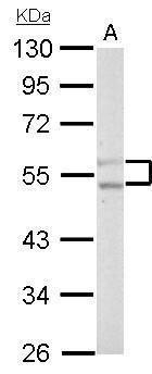 PFKFB4 Antibody (PA5-28648) in Western Blot