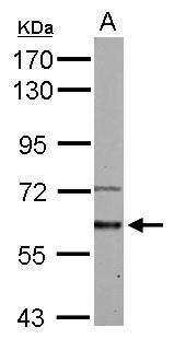 ACVR1 Antibody (PA5-28662)