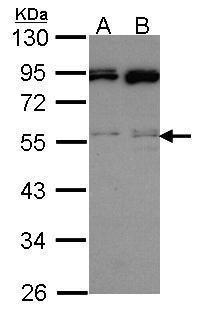 JNK2 Antibody (PA5-28664) in Western Blot