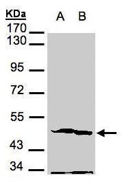 PGK2 Antibody (PA5-28669) in Western Blot