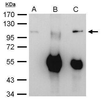 PM-Scl Antibody (PA5-28672) in Immunoprecipitation