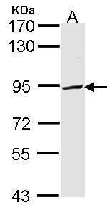 PFKP Antibody (PA5-28673) in Western Blot