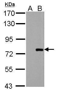 PAK6 Antibody (PA5-28674) in Western Blot