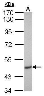 IP6K2 Antibody (PA5-28681) in Western Blot