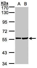TAB1 Antibody (PA5-28683) in Western Blot