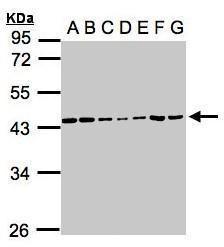 CK2 alpha-1 Antibody (PA5-28686) in Western Blot