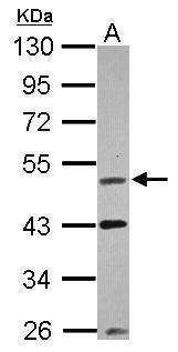 VRK1 Antibody (PA5-28687) in Western Blot
