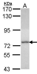DDX1 Antibody (PA5-28695) in Western Blot