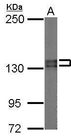 PUM2 Antibody (PA5-28705) in Western Blot