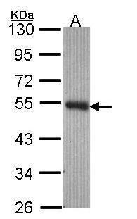PACSIN3 Antibody (PA5-28708)