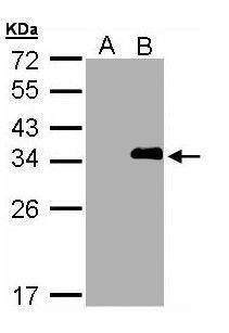 LASP1 Antibody (PA5-28711)