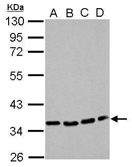 P2Y12 Antibody (PA5-28740) in Western Blot