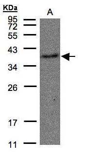 TBXA2R Antibody (PA5-28753) in Western Blot