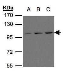 mGluR6 Antibody (PA5-28770) in Western Blot