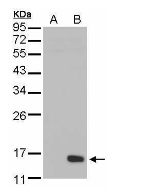 DUSP23 Antibody (PA5-28773) in Western Blot